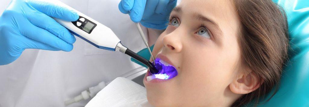 dental-sealants-wilson-nc