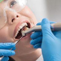 cavity-treatment